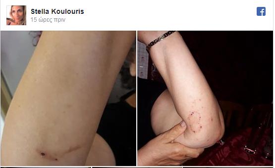 """Photo of Kρούσματα Σταφυλόκοκου στη Λευκίμη -""""Δώρα"""" Νικολούζου πριν την πανώλη-χολέρα"""