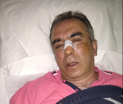 Photo of Nεα απρόκλητη επίθεση απο Ματατζη στη Λευκίμμη.Γρονθοκόπησε τον  τον Κώστα Ασπιώτη.